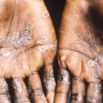 Second monkeypox case recorded in England: report