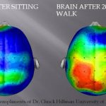 Regular Exercise Helps Protect The Brain From Silent Strokes (STUDY)