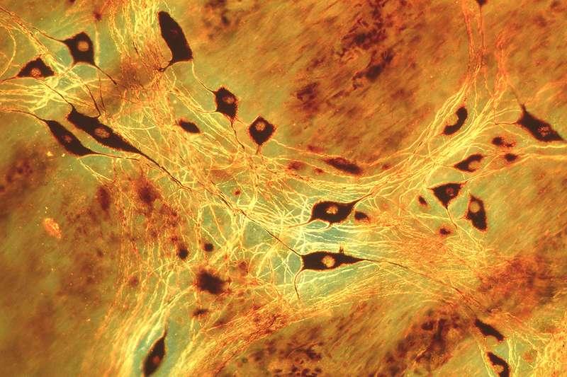 Nerve cells in small intestine