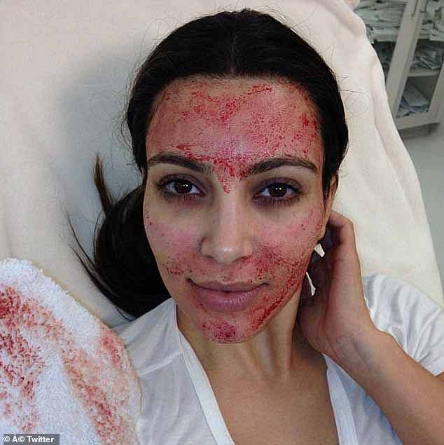 The P-shot, which is a variation on the so-called Vampire Facial, which Kim Kardashian posted a now infamous snap of herself undergoing in 2013