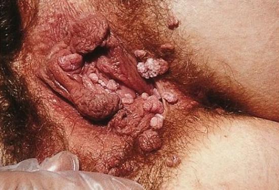 Vaginal genital warts. Image credit: SOA-AIDS Amsterdam, 2005.