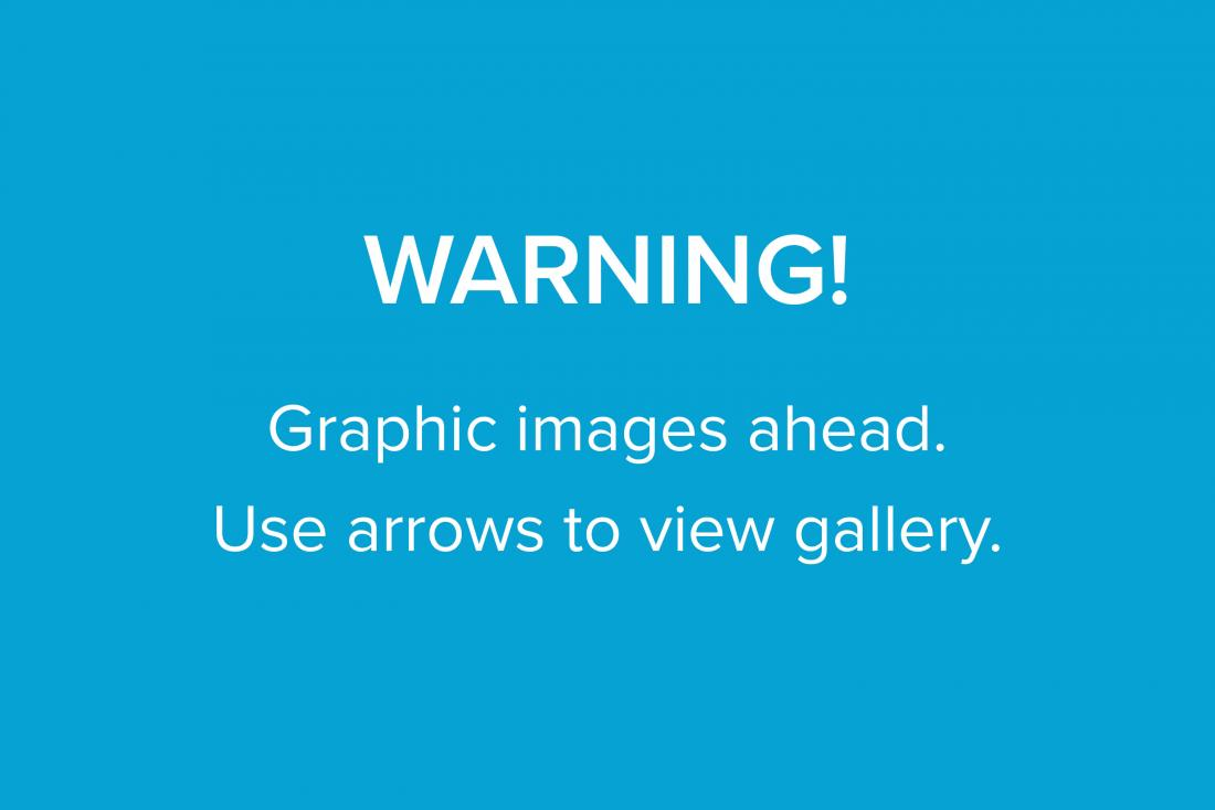 Warning for graphic image slideshow