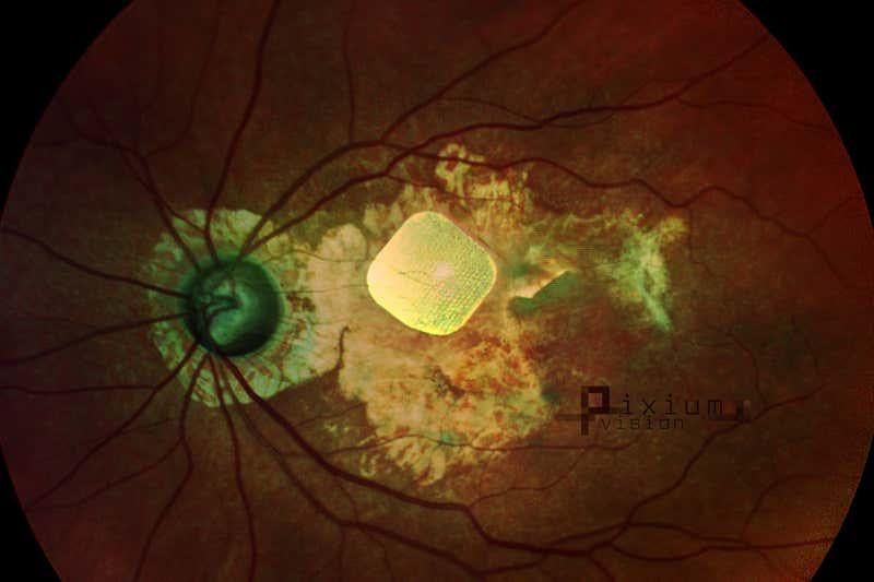 Implant behind eye