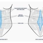 How to Train Clients With Diastasis Recti