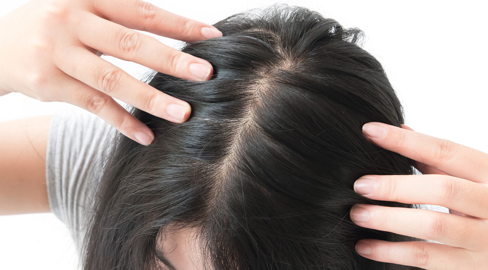 causes-of-hair-loss-woman-with-hair-loss.jpg