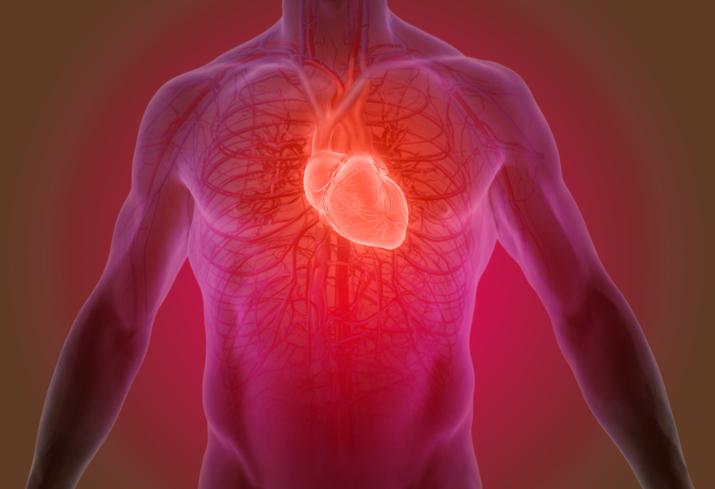 heart cardiac catheterization